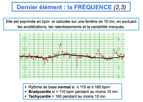 La-frequence